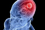 meningioma_3