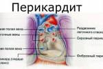 perikardit_4
