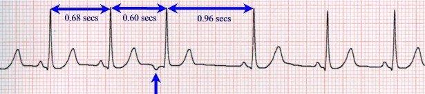 Экстрасистолия сердца - симптомы, причины, лечение