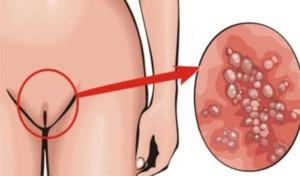 инфекционная болезнь в половых органах
