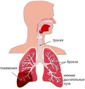 пневмония опасный недуг